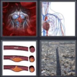 4-pics-1-word-artery